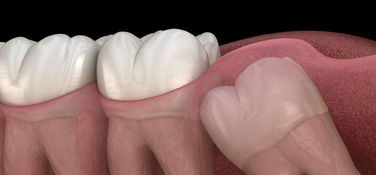 4 Cara Mengobati Rasa Sakit Akibat Tumbuh Gigi Bungsu