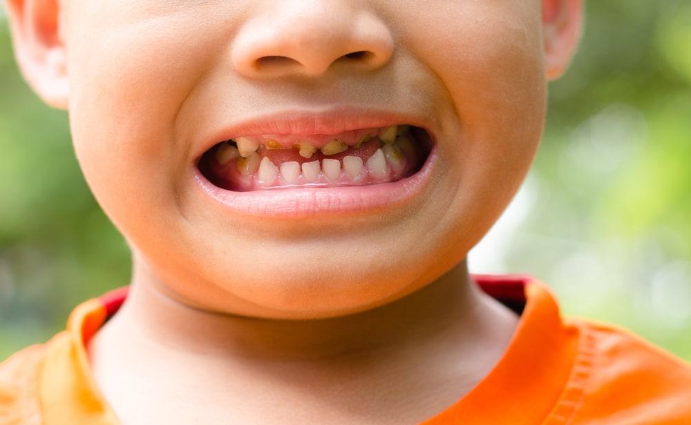 3 Penyebab Umum Mengapa Gigi Anak Rentan Kena Karies