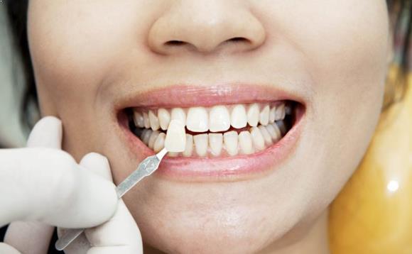 Mau Pakai Veneer Gigi? Kenali Dulu Jenis dan Manfaatnya