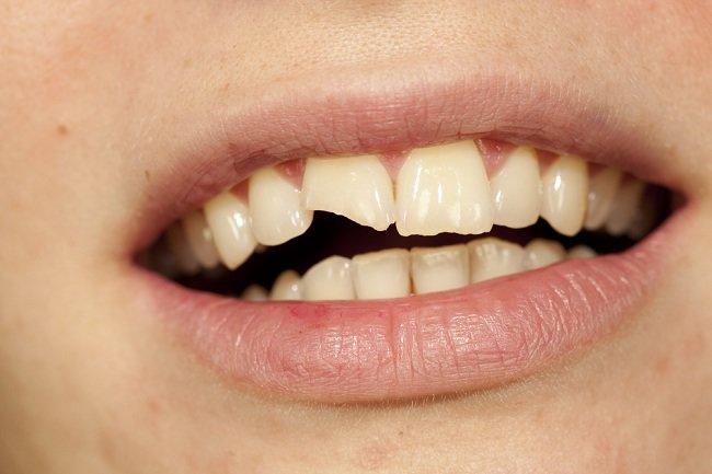 7 Hal yang Dapat Merusak Gigi, Kebiasaan Menggigiti Pulpen hingga Membuka Bungkus Makanan