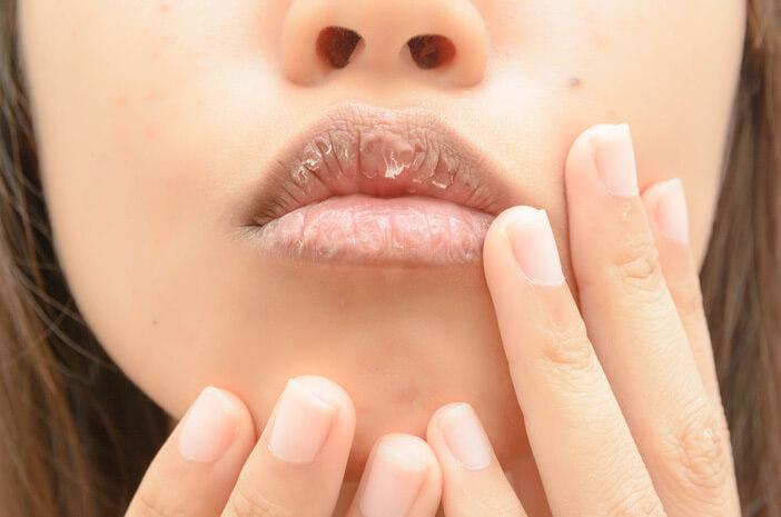 Mulut Kering (Xerostomia): Penyebab, Gejala, Diagnosis, dan Perawatan