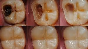Apa yang menyebabkan kerusakan gigi ?