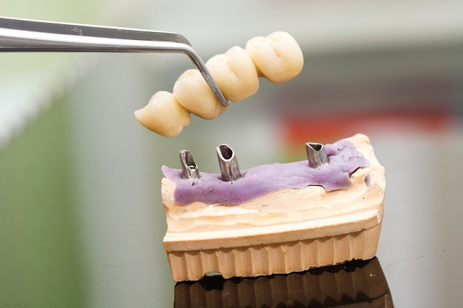 Memahami Proses Pemasangan Implan Gigi