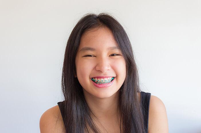 Perawatan Kawat Gigi Agar Tidak Bau Mulut
