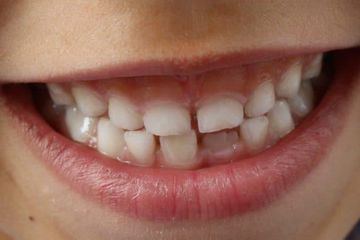 Mengenal Hypodontia, Kelainan Genetik Saat Sejumlah Gigi Tak Tumbuh