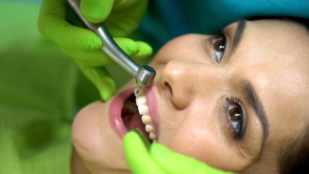 Mengenal Bonding Gigi, Solusi Ampuh Memperbaiki Tampilan Gigi yang Rusak