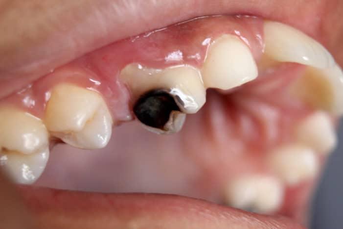 Kenali Penyebab Gigi Hitam Anda